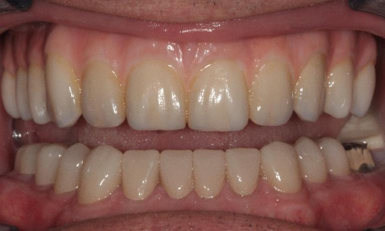 Fixed-Implant-Dentures-help-a-patient-with-a-long-term-issue-of-breaking-teeth-After-Image